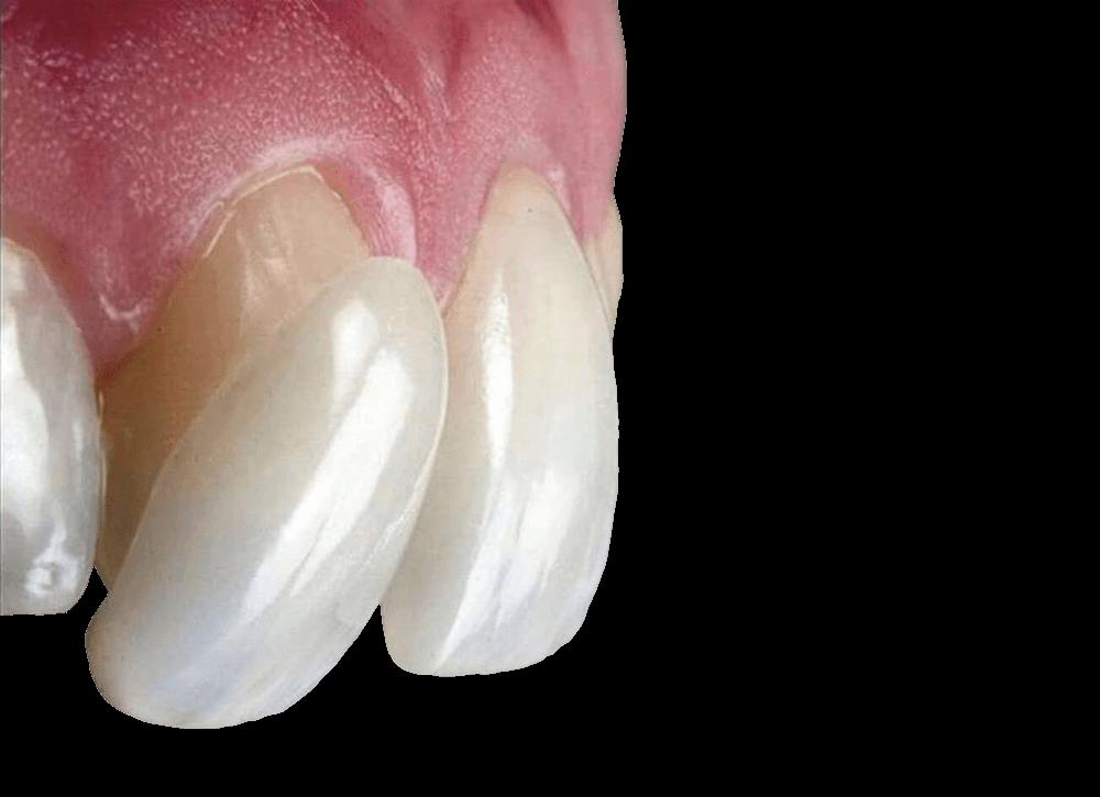 Виниры для зубов цена старый оскол